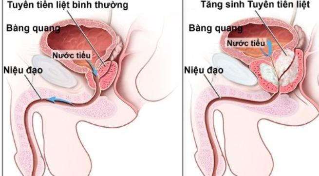 Tăng sinh lành tính tuyến tiền liệt