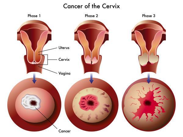 Cách điều trị viêm lộ tuyến cổ tử cung