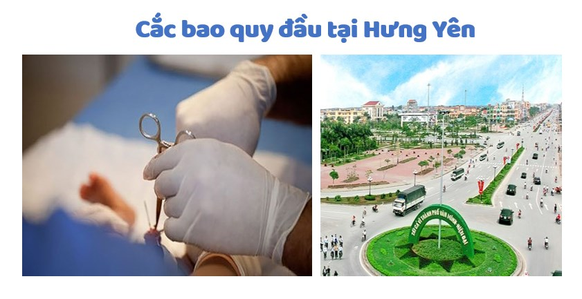 Lựa chọn địa chỉ cắt bao quy đầu ở Hưng Yên an toàn